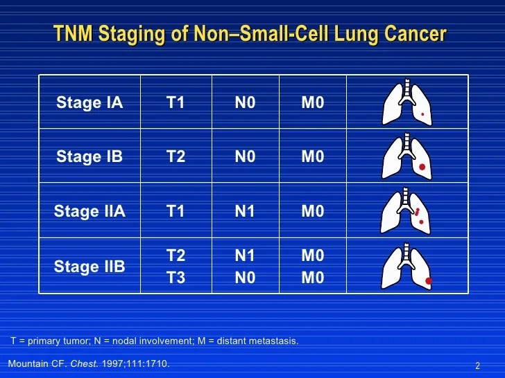 Image Result For Lung Cancer Stage