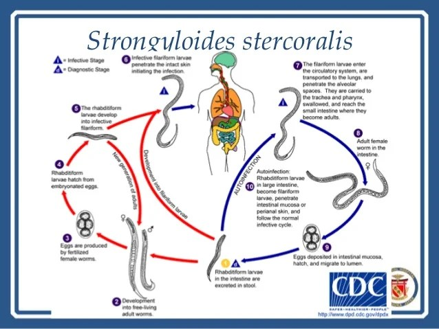 Strongyloides Stercoralis Treatment