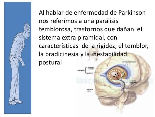 Resultado de imagen para imagenes enfermedad de parkinson