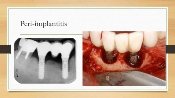 Peri-Implantitis Bukan Peri Biasa- Global Estetik Dental Care
