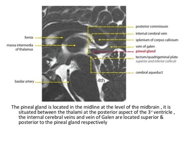 Quadrigeminal Plate Sagittal