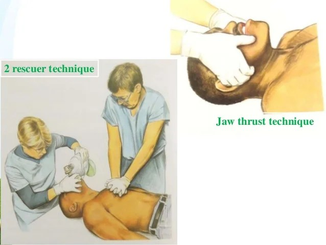 Thrust Tilt Jaw Lift Chin Head