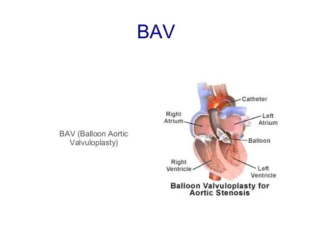 Valvuloplasty Procedure Valve Balloon Mitral