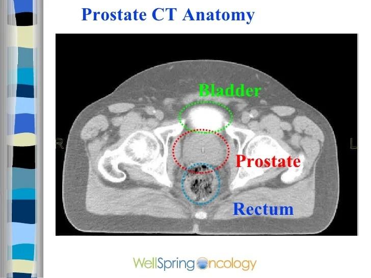 Cavity And Colon Pelvic Ovaries Anatomy