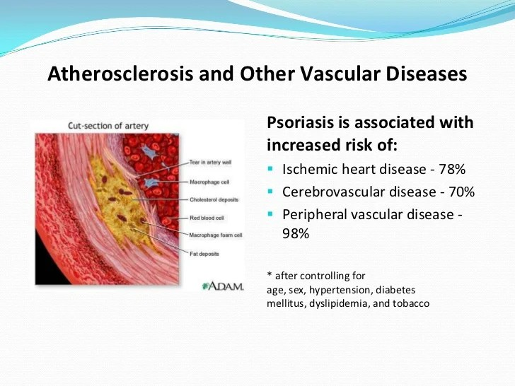 Psoriatic Arthritis and Connection to Diet: an ...