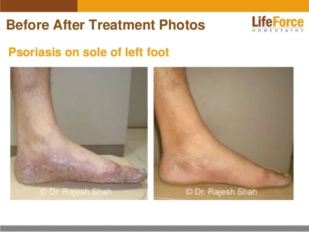 Psoriasis on Legs Photos: Before After Treatment Pictures ...