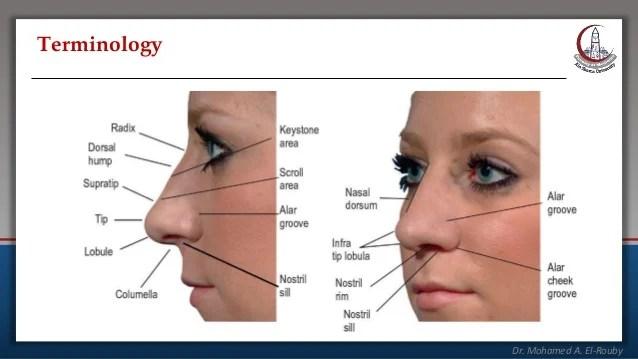 Rhinoplasty - all You want to know about rhinoplasty or ...