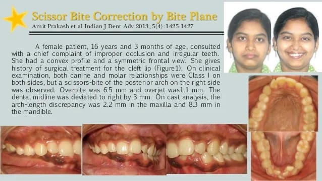 Deep Bite Correction And After