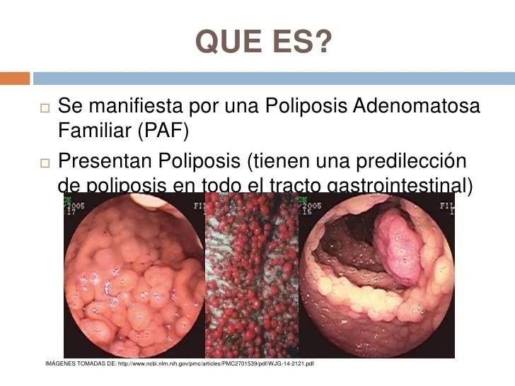 Imagenes De El Intestino Grueso