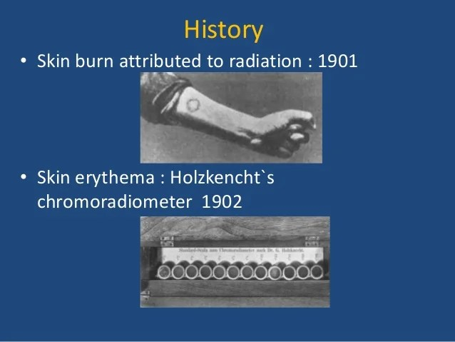 Radiation Therapy Skin Reactions