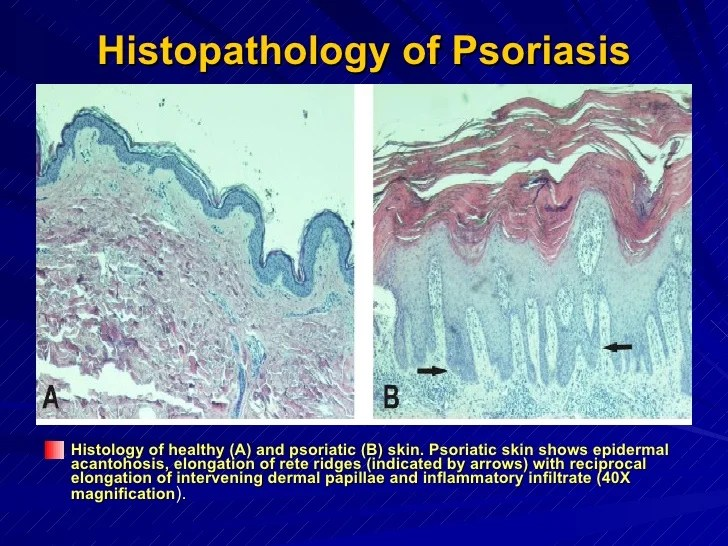 Stat3 protein & t helper 17 cell -in psoriasis by yousry a ...