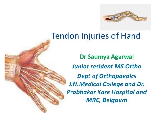 Wrist Anatomy Tendon And Ligament Thumb