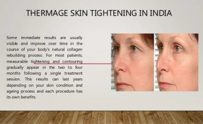 My Thermigen Skin Tightening Experience