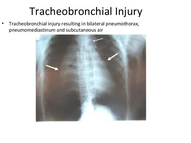 X Ray Images Tear Aortic