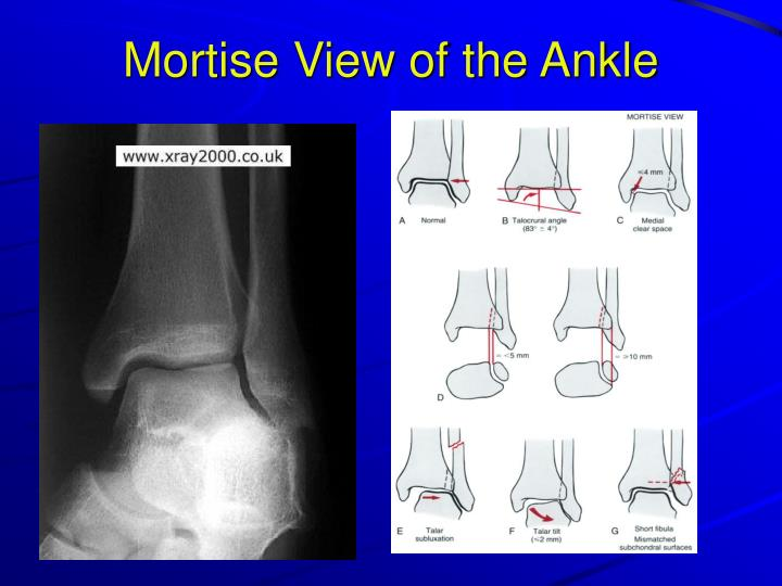 Right Ankle X Ray Anatomy