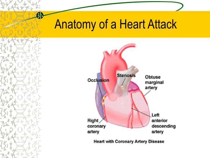 Squeezing Pain Heart Area