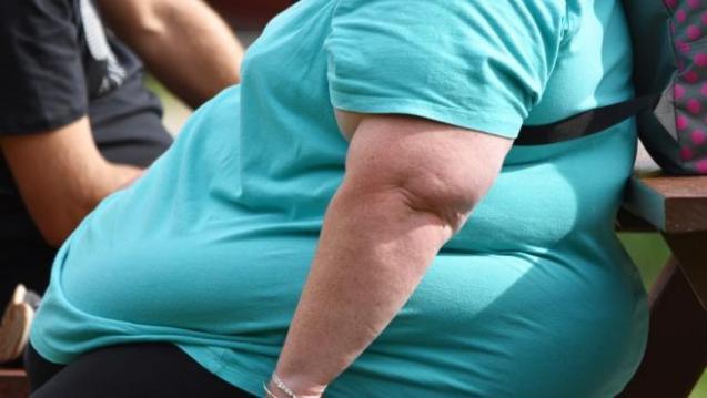 Aconsejan a personas obesas reducir peso ante posible rebrote de coronavirus