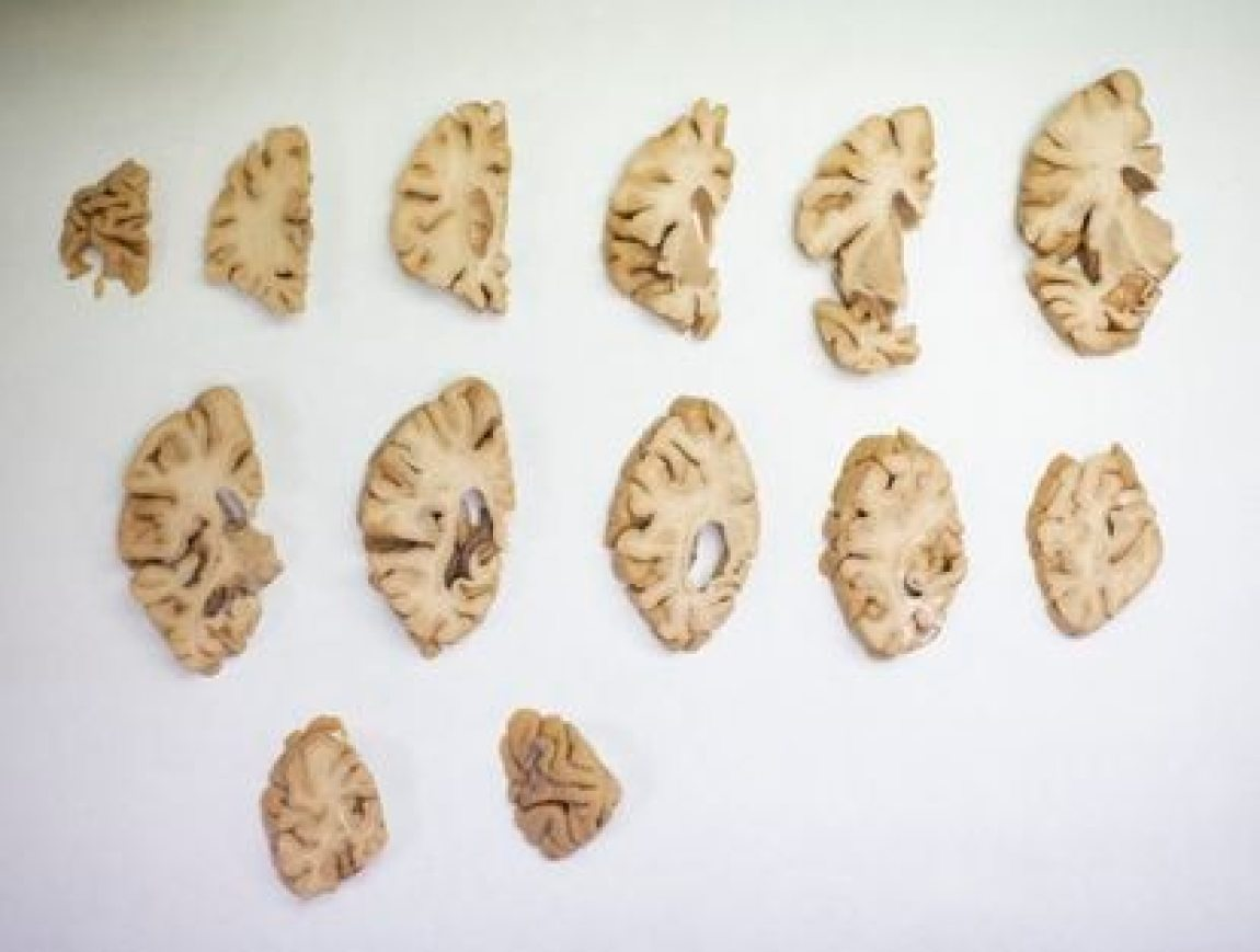 A dissected human brain at the CIEN Foundation in Madrid.