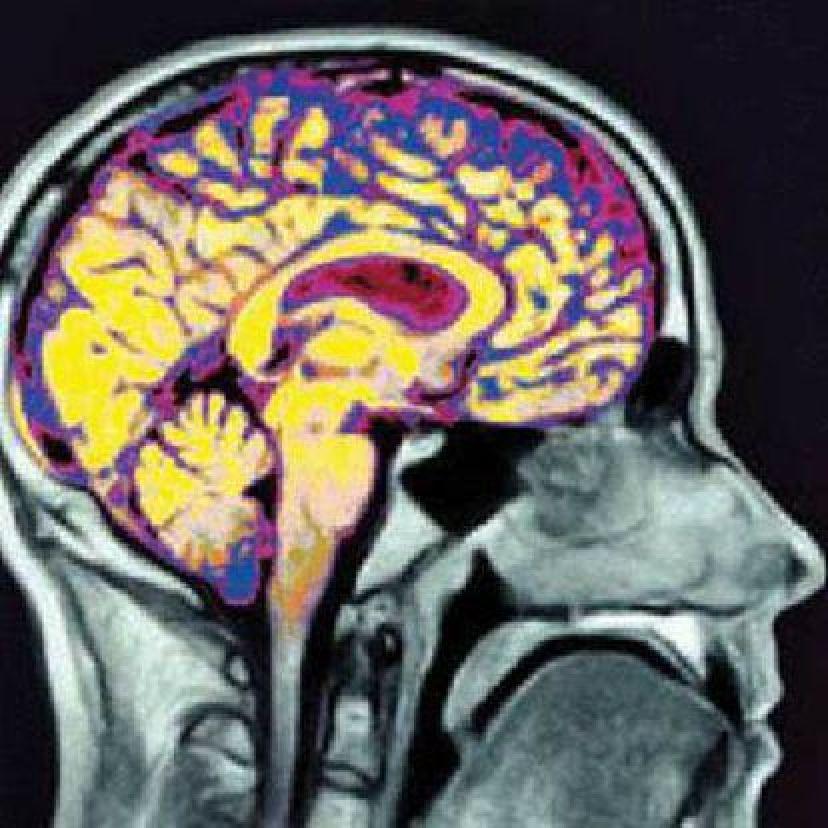 Imagen del cerebro en funcionamiento.
