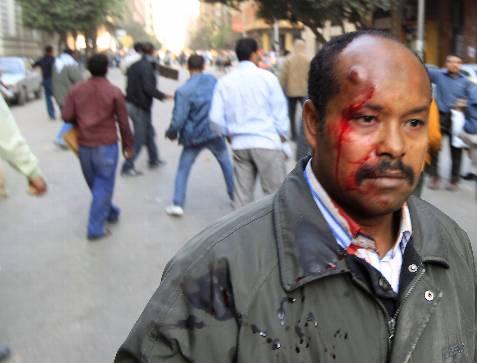 Otro herido en la plaza Tahrir. REUTERS/Goran Tomasevic