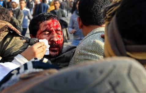 Sangre en la cara de los manifestantes. REUTERS/Goran Tomasevic