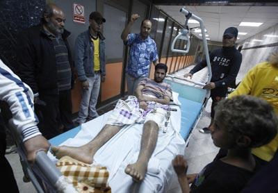 Trípoli muestra un supuesto herido de la OTAN. -