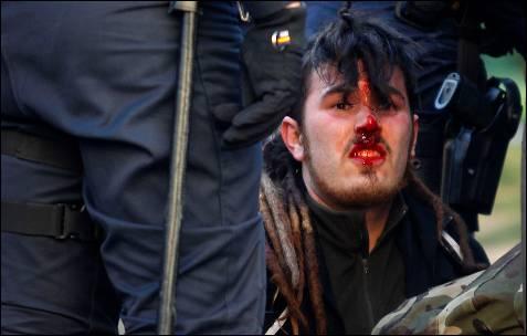 Un joven herido.