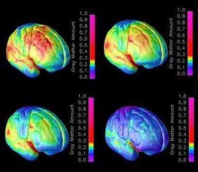 Combo de imágenes que muestran el proceso de maduración del cerebro.