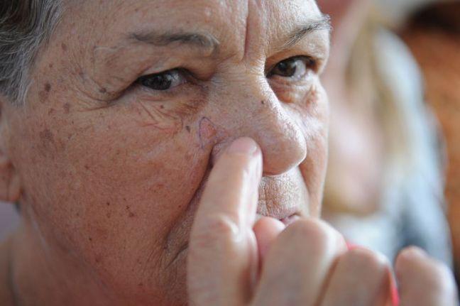 No Dia Nacional de Combate ao Câncer de Pele