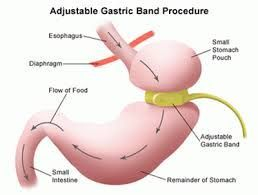 weight loss surgery / bariatric surgery banding