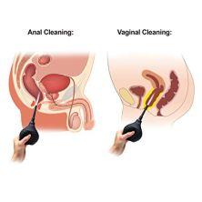 Luvkis-250ml-Silicone-Anal-enema-y-Vaginal-Shower-Anti-reflux-Enema-Syringe-Ayuda-con-el-estreimiento