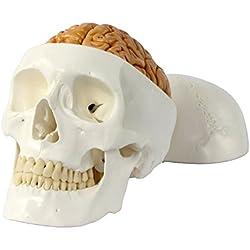 Cráneo humano con cerebro
