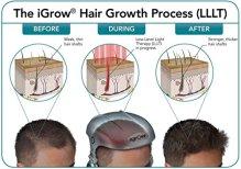 iGrow-El-sistema-de-crecimiento-del-cabello-mediante-terapia-con-lser-para-Hombres-y-mujeres-Blanco