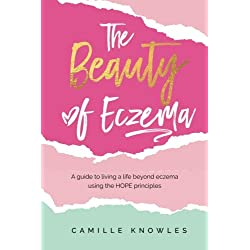 The Beauty of Eczema: A Guide To Living a Life Beyond Eczema Using The Hope Principles