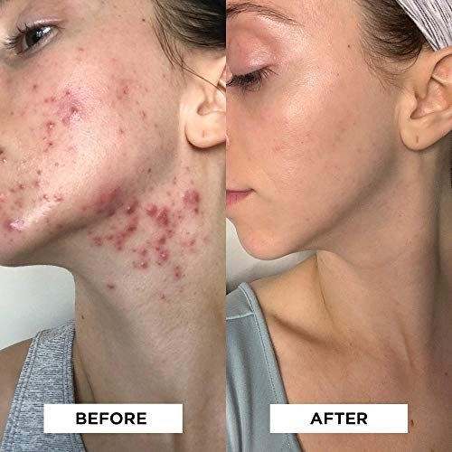 StackedSkincare Dermaplaning Face Exfoliating Tool   Smooth, Radiant, Glowing Skin   No Brush or Scrub Needed (1… 1