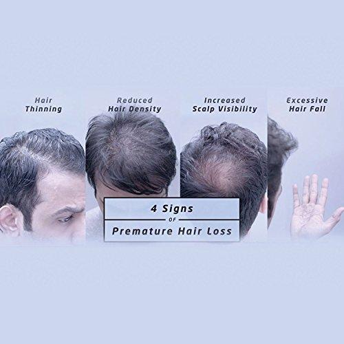 518bqdRT9yL - Livon Hair Gain Tonic for Men, 150ml