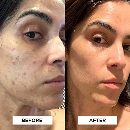 StackedSkincare Dermaplaning Face Exfoliating Tool   Smooth, Radiant, Glowing Skin   No Brush or Scrub Needed (1… 2