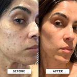 StackedSkincare Dermaplaning Face Exfoliating Tool   Smooth, Radiant, Glowing Skin   No Brush or Scrub Needed (1… 4