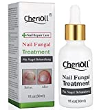 Toenail Fungus Treatment, Fungus Stop, Anti fungal Nail Solution, Maximum Strength Anti-Fungal Nail Solution, Effective Against Nail Fungus, Anti-Fungal Toenails