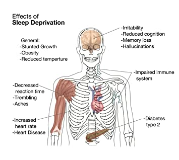 effects that sleep deprivation