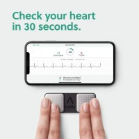 Alivecor Review
