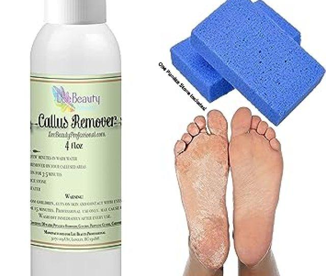 4 Oz Callus Remover With Pumice Stone Callus Eliminatorliquid Gel For