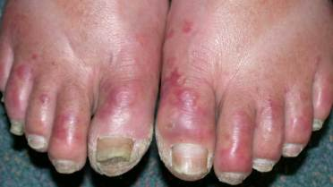 Chilblains on Fingers, Toes, and Feet: Causes, Pictures, Treatment