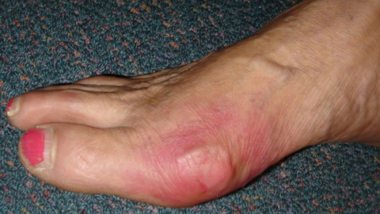 Síntomas de gota|saludverdes.com
