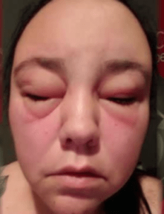 Popular hair product causes severe allergic reaction | 7NEWS.com.au