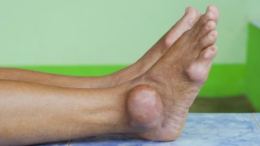 Image result for gout images