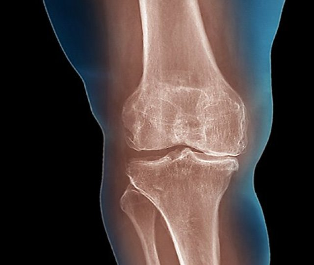 To Help Knee Osteoarthritis Lose As Much Weight As Possible