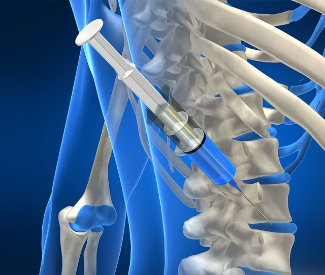 The Researchers Found That A Single Steroid Injection Eased Pain For One Month