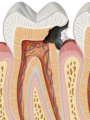 Anatomy of Your Mouth  Tooth, Canker & Cold Sores   Everyday Health