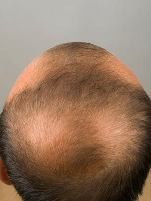 10 Causes Of Hair Loss Hair Loss Center Everyday Health